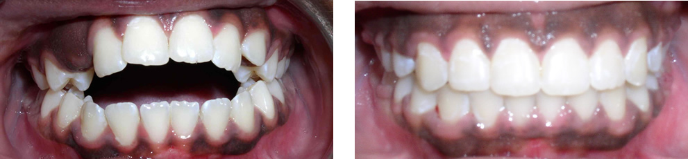Case 3:  Anterior openbite with tongue thrusting habit, treated with non-extraction