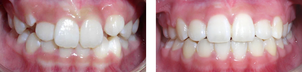 Case 6:  Class I crowding with missing two lower incisors, treated with extraction of two upper premolars